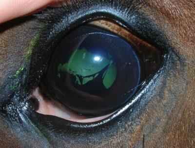 Zrosty tęczówkowo-soczewkowe poprzebytej ślepocie miesięcznej